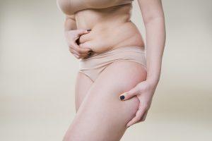 Tummy Tuck Columbus Ohio Abdominoplasty Plastic Surgery